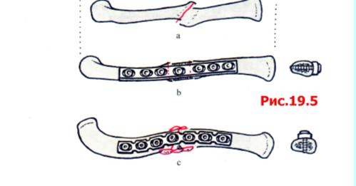 Последствия повреждения связок голеностопного сустава