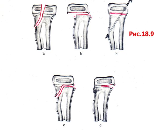 Перелом дистального отдела лучевой кости